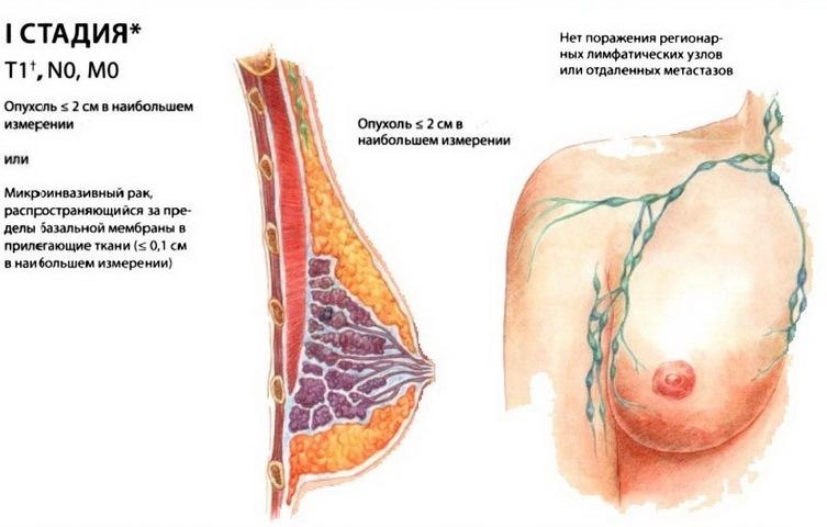 Карцинома молочной железы стадии